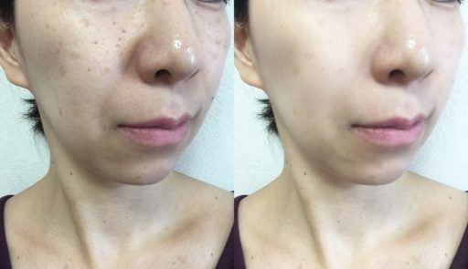 美顔器でほうれい線が目立たくなった前後の比較イメージ画像